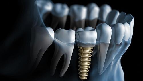 Nhổ răng cấm khi răng bị sâu an toàn nhất - Nha khoa Paris 2