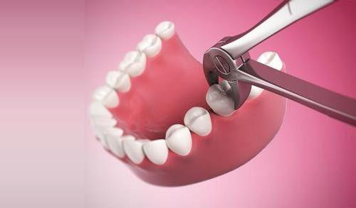 Nhổ răng cấm khi răng bị sâu an toàn nhất - Nha khoa Paris1