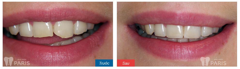 Răng cửa bị mẻ phải làm sao để khắc phục TRIỆT ĐỂ nhất 2