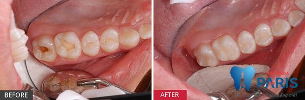 Quy trình lấy tủy răng đạt tiêu chuẩn QUỐC TẾ - NK Paris 3