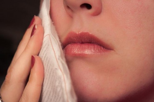 Răng khôn mọc lệch ra má: Nguyên nhân & Cách điều trị TRIỆT ĐỂ 1