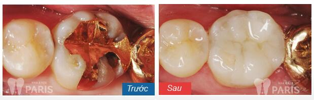 Nguyên nhân và cách hỗ trợ điều trị buốt răng khi ăn đồ ngọt 3
