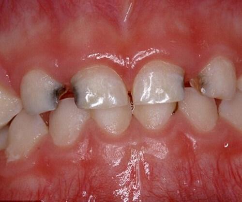 Nguyên nhân và cách hỗ trợ điều trị buốt răng khi ăn đồ ngọt  2