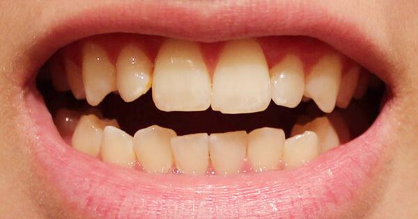 Tại sao răng bị mẻ và cách khắc phục Nhanh Chóng - Hiệu Quả nhất 1