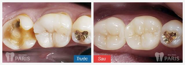 Buốt răng sau sinh - phòng hơn chữa giải quyết lo lắng của chị em 3