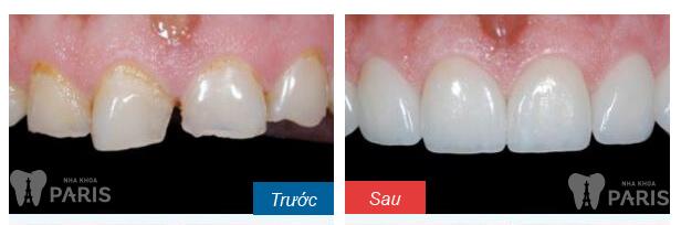 Buốt răng sau sinh - phòng hơn chữa giải quyết lo lắng của chị em 4
