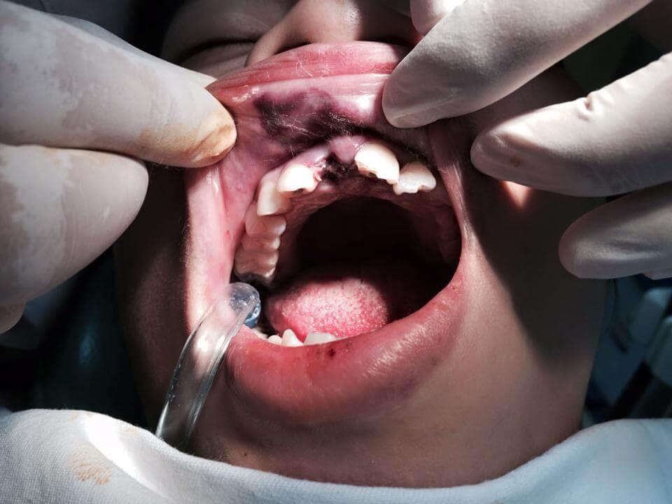"""5 Cách giảm đau sau khi nhổ răng """"Tại Nhà"""" ĐƠN GIẢN & HIỆU QUẢ 3"""