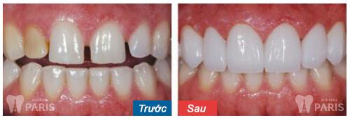 Địa chỉ phòng khám răng Đà Nẵng ở đâu Tốt, An Toàn và Uy Tín nhất? 5