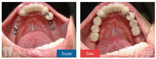 Địa chỉ phòng khám răng Đà Nẵng ở đâu Tốt, An Toàn và Uy Tín nhất? 7