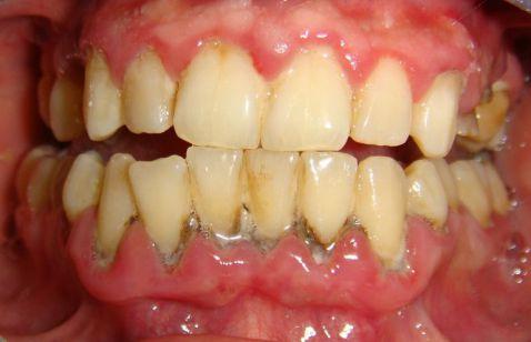 Bị viêm nướu răng phải làm sao chữa hiệu quả triệt để? 3