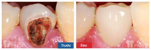 Sâu răng quá nặng - Cách khắc phục cho từng trường hợp cụ thể 1