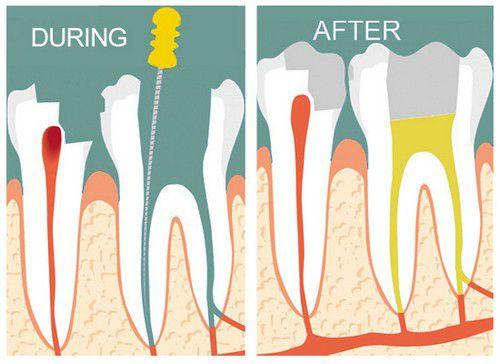 Sâu răng quá nặng - Cách khắc phục cho từng trường hợp cụ thể 2