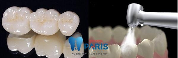 đau tủy răng