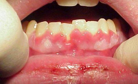 """Viêm nướu răng uống thuốc gì """"Tại Nhà"""" AN TOÀN & HIỆU QUẢ nhất 1"""