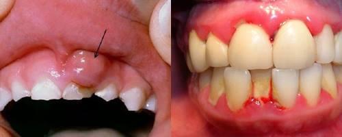 """Cách chữa sưng mộng răng có mủ AN TOÀN """"Tại Nhà"""" HIỆU QUẢ 1"""