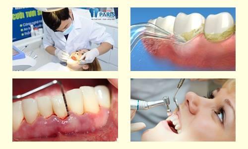 """Cách chữa sưng mộng răng có mủ AN TOÀN """"Tại Nhà"""" HIỆU QUẢ 3"""