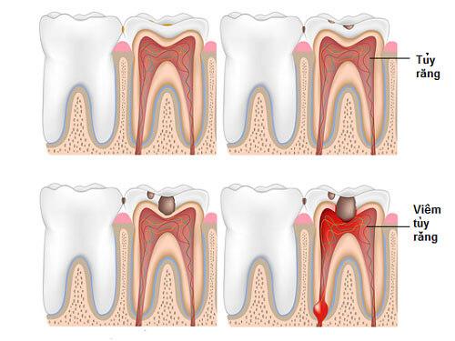 Cảnh báo về mức độ nguy hiểm của viêm tủy răng! 1