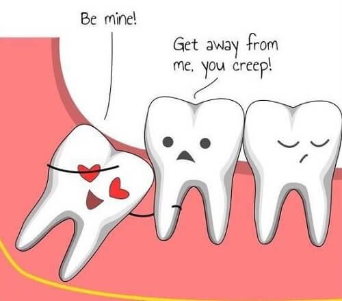 Răng khôn là gì? Có nên nhổ răng khôn hay không? 2