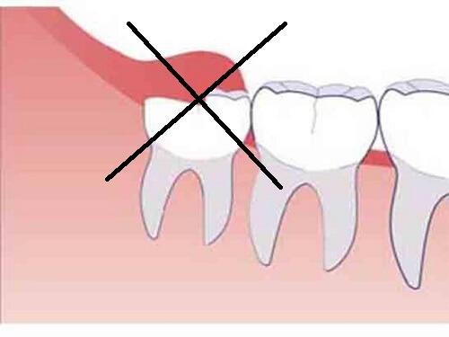 Viêm lợi trùm răng khôn uống thuốc gì để giảm đau sưng nhanh nhất 3