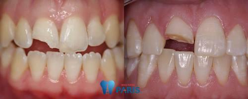 Nguyên nhân và cách khắc phục dứt điểm răng bị sứt mẻ 2
