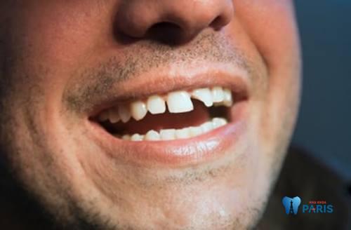 Nguyên nhân và cách khắc phục dứt điểm răng bị sứt mẻ 1