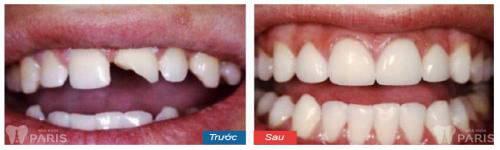 Nguyên nhân và cách khắc phục dứt điểm răng bị sứt mẻ 3
