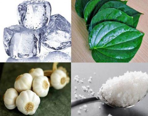 """5 cách trị nhức răng Cấp Tốc """"Tại Nhà"""" ĐƠN GIẢN & HIỆU QUẢ 2"""