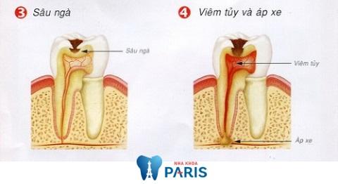 Các bệnh lý răng miệng là nguyên nhân chính dẫn đến viêm chóp răng