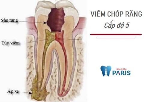 Áp xe tái phát là biểu hiện của viêm chóp răng cấp độ 5