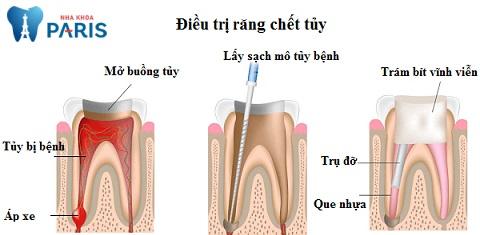 Cách điều trị viêm chóp răng giai đoạn đầu