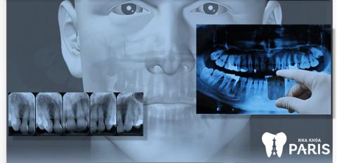 Khi điều trị viêm chóp răng cần thực hiện chụp phim mới chẩn đoán được chính xác