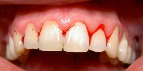 cách chữa hôi miệng và chảy máu chân răng 1