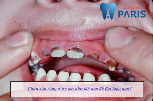 Cách chữa sâu răng ở trẻ em hiệu quả