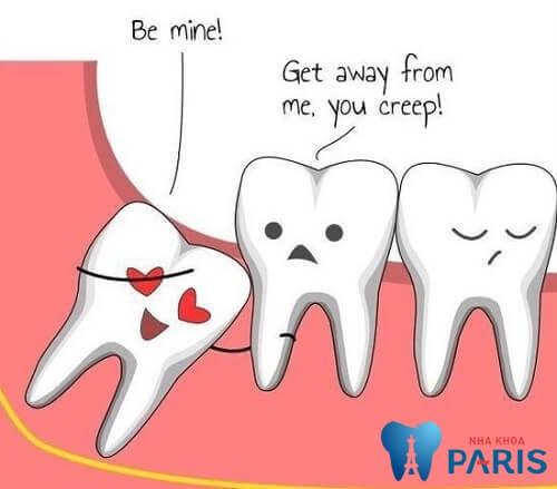 """""""BỎ TÚI"""" ngay 4 điều cực kỳ cần thiết khi nhổ răng khôn 1"""