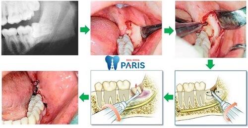 """""""BỎ TÚI"""" ngay 4 điều cực kỳ cần thiết khi nhổ răng khôn 2"""