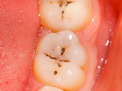 Khắc phục nhanh lỗ sâu răng nhỏ hiệu quả ngay tại nhà 1