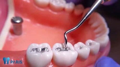 Nguyên nhân & Cách phòng tránh nhức răng sau khi trám HIỆU QUẢ 1