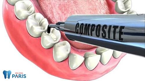 Nguyên nhân & Cách phòng tránh nhức răng sau khi trám HIỆU QUẢ 3