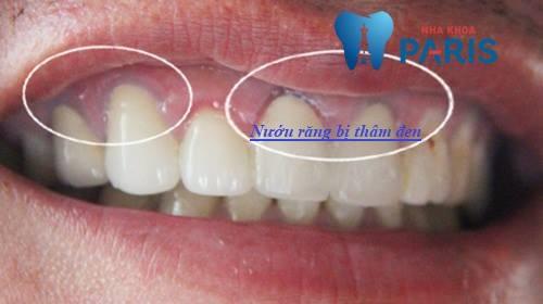 Nướu răng bị thâm đen làm thế nào để chữa trị AN TOÀN & HIỆU QUẢ 1
