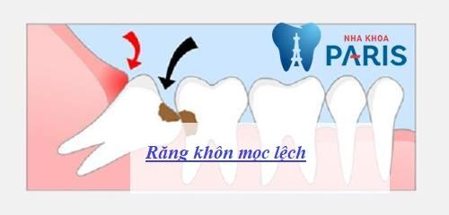 Răng khôn mọc lệch: Nguyên nhân & Cách khắc phục AN TOÀN nhất 1