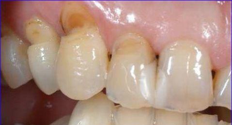 """Cách chữa buốt răng khi uống nước lạnh """"AN TOÀN"""" HIỆU QUẢ nhất 2"""
