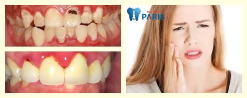 Đau răng uống thuốc gì để GIẢM & CHỮA trị đau răng Hiệu Quả nhất 1