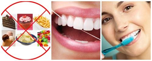 Đau răng uống thuốc gì để GIẢM & CHỮA trị đau răng Hiệu Quả nhất 3