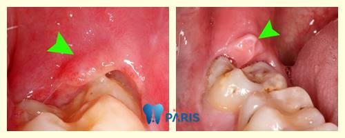 Sưng nướu răng trong cùng - Nguyên nhân & Cách điều trị Dứt Điểm 3