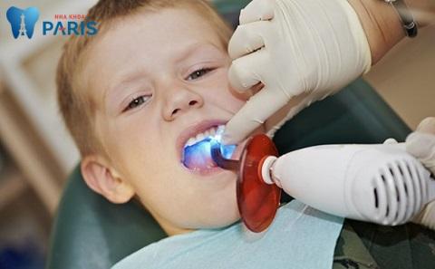 Khi đã biết răng cấm có thay không, cần cho bé điều trị sớm nếu bị sâu răng cấm