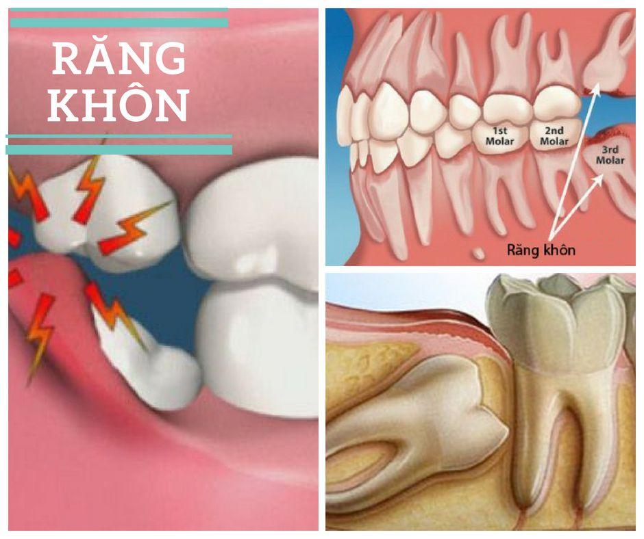Nhổ răng khôn có ẢNH HƯỞNG đến thần kinh hay không? 1