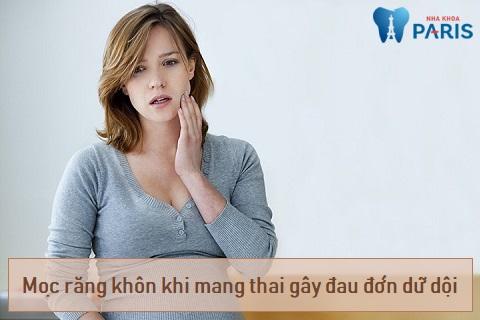 Mọc răng khôn khi mang thai cần được xử lý sớm