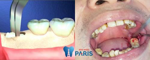 Một số điều bạn cần nắm rõ khi bị áp xe răng khôn 4