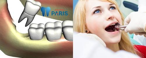Chi phí nhổ răng khôn bao nhiêu tiền? [Bảng giá CHUẨN nhất 2018] 1