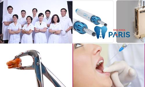 Chi phí nhổ răng khôn bao nhiêu tiền? [Bảng giá CHUẨN nhất 2018] 2